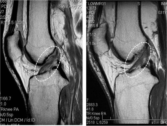 xiastos anterior cruciate ligamentinjury management 30 638
